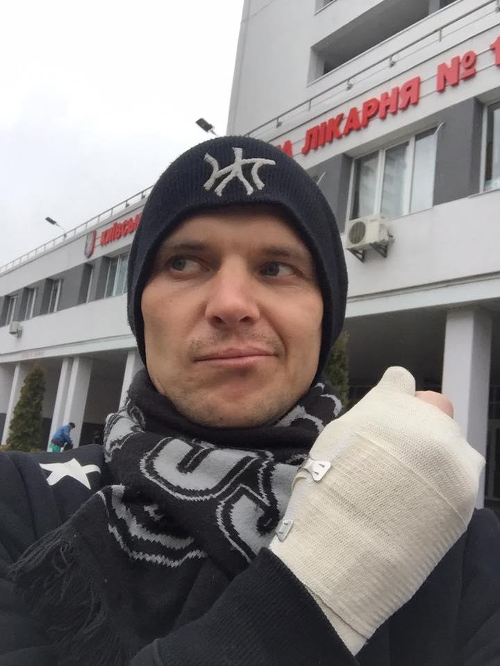 Ветеран АТО зловив на гарячому кишенькового злодія (фото, відео)