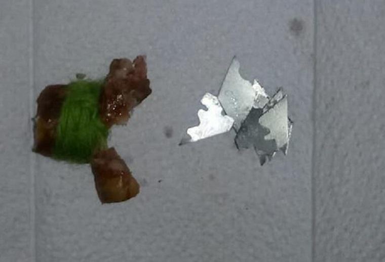 Киян попередили про жорстокі догхантерів (фото)