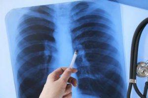 Перевір легені: кияни можуть безкоштовно обстежитися на флюорографі (адреси)